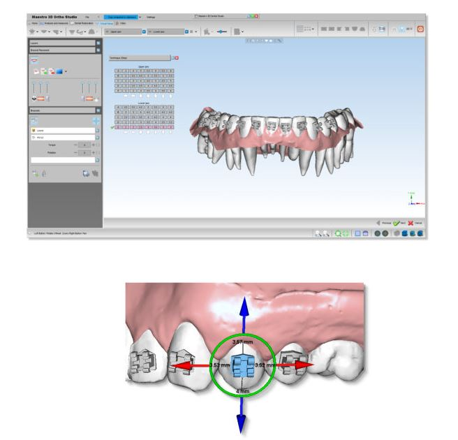 Exocad Software (Exocad America) Dental Product | Pearson Dental